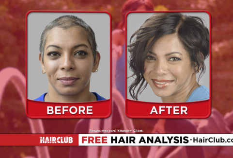 Hair Club – All You Got To Do